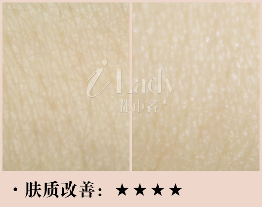 fracora维C美白粉测评肤质改善